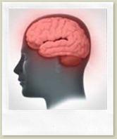 dementia-brain-cha