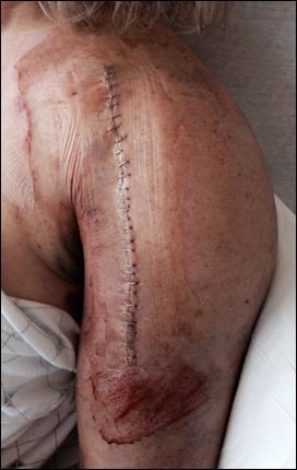 Brenda_Surgery_incision_150802